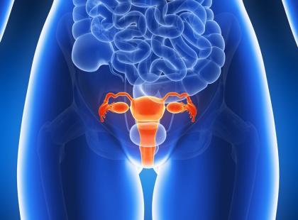 Fakty i mity na temat mięśniaków macicy