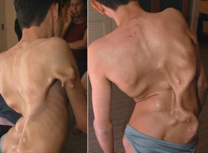 Fibrodysplazja - postępujące kostniejące zapalenie mięśni