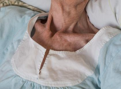 Formularz SGA – test pozwalający zdiagnozować niedożywienie
