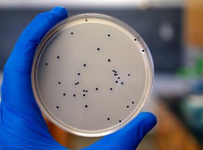 Gronkowiec złocisty - groźna bakteria