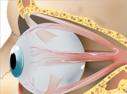 Guzy nerwu wzrokowego