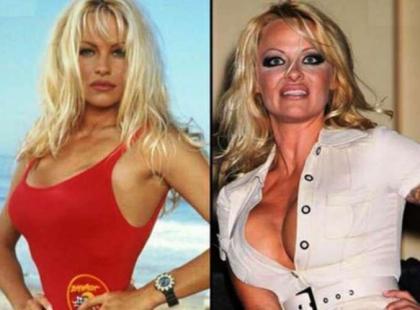 Pamela Anderson przed operacjami plastycznymi i po nich.