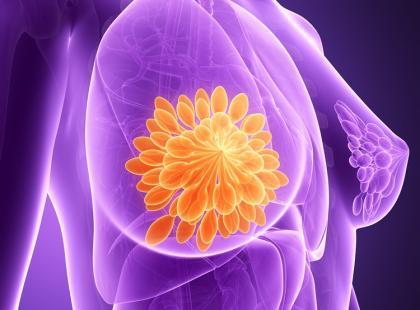 HER-2 dodatni rak piersi – podanie podskórne leku zamiast kroplówki