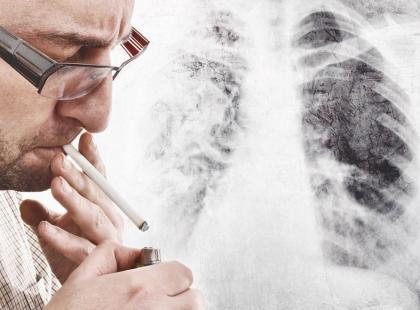 Ilu Polaków umiera na raka płuca?