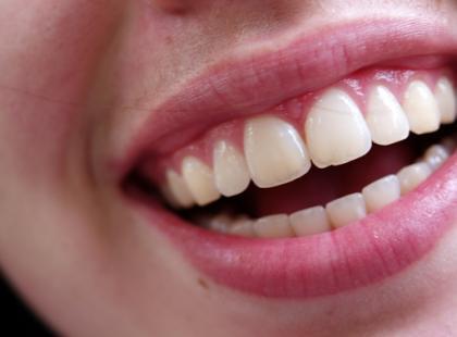 Implanty stomatologiczne – poradnik