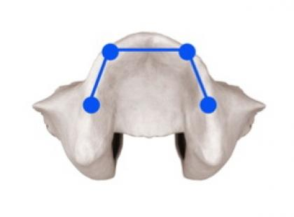 Implanty zamiast ruchomej protezy – wygodne rozwiązanie
