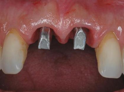 Implanty zębów – galeria