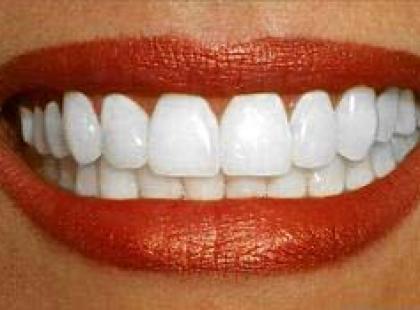 Implanty zębów – zanim się zdecydujesz