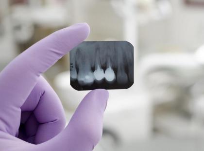 Implanty zębowe - popularne mity