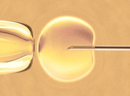 In vitro – koszty
