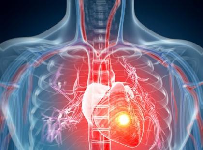 Jak aktywność fizyczna wpływa na zdrowie serca?