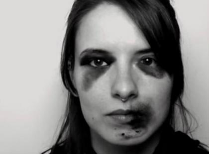 Jak byś wyglądała, gdybyś była ofiarą przemocy? Automat do siniaków ci to pokaże