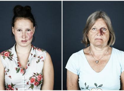 Jak długo będziesz się jeszcze gapić?! Te zdjęcia mają pokazać, że osoby ze znamionami na twarzach nie powinny budzić niechęci