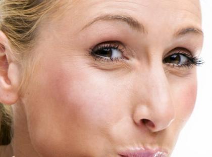 Jak może objawiać się alergia?