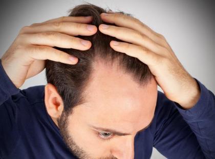 Jak można skutecznie powstrzymać łysienie?