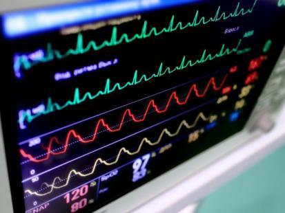 Jak odczytać wyniki badania EKG?