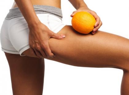 Jak ograniczyć powstawanie cellulitu?