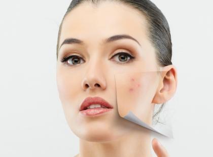 Jak pielęgnować skórę z trądzikiem różowatym?