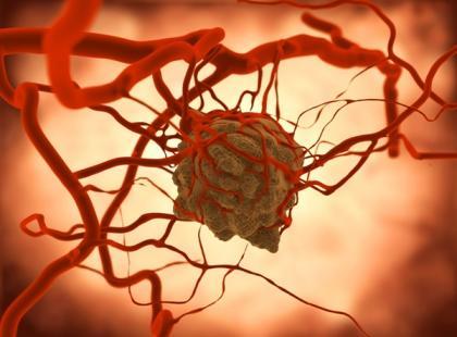 Jak powstają nowotwory?