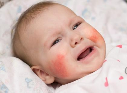 Jak rozpoznać atopowe zapalenie skóry?