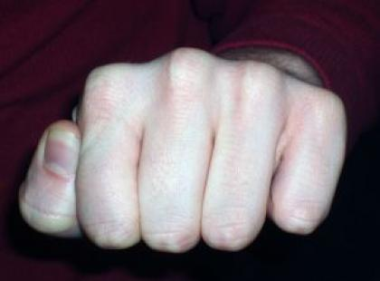 Jak rozpoznać grzybicę paznokci?