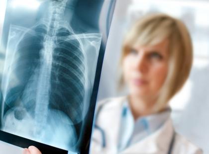 Jak rozpoznać raka płuc? Poznaj objawy tego nowotworu