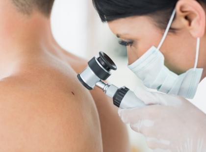 Jak rozpoznać, że to rak skóry?