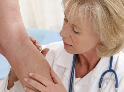 Jak uniknąć żylnej choroby zakrzepowo-zatorowej? [wywiad]