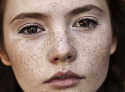 Jak usunąć przebarwienia powstałe na skórze?