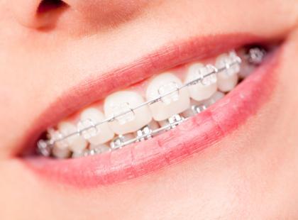 kobieta, aparat ortodontyczny