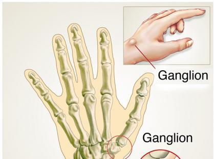 Jak wyleczyć ganglion?