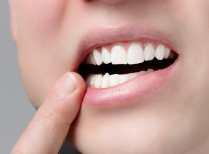 Jak wyprostować krzywe zęby?