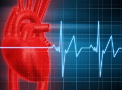 Serce - wykres EKG