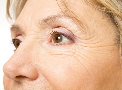 Jak zlikwidować kurze łapki po 40., 50. i 60. roku życia?