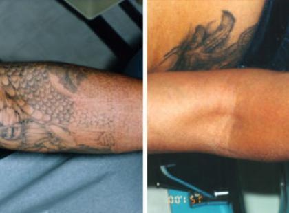 Jak zlikwidować tatuaż?