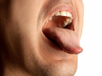 Jakie choroby dotyczą języka?