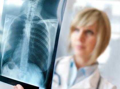 Jakie choroby przebiegają ze zwłóknieniem płuc?