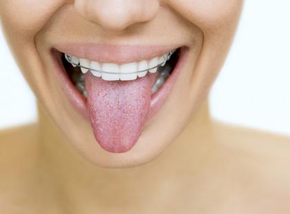 Jakie gadżety pomagają dbać o zęby, gdy nosimy aparat?