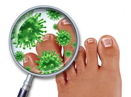 Jakie są objawy grzybicy stóp i paznokci?