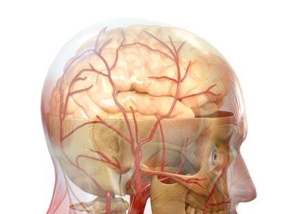Jakie są objawy krwotoku śródmózgowego i podpajęczynówkowego?