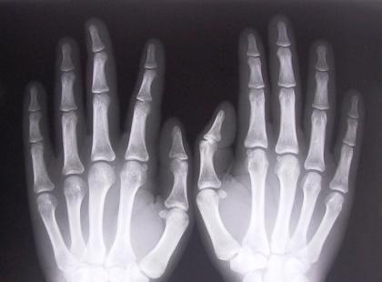 Jakie są rodzaje osteoporozy?