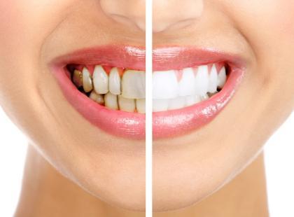 Zęby/ fot. Fotolia