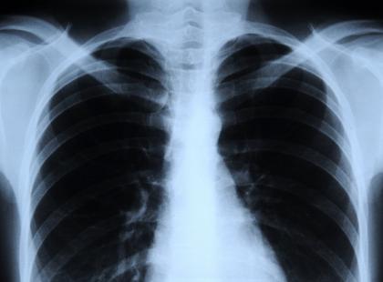 Jeden gen odpowiedzialny za raka płuc