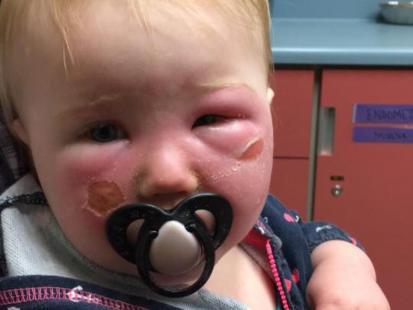 """""""Jej twarz była opuchnięta i w bąblach"""". Zamiast ochronić przed słońcem, krem z filtrem spowodował ostre poparzenia skóry dziewczynki"""