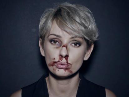 """""""Jeśli uderzy raz, nie czekaj na drugi"""" - wstrząsające zdjęcia i słowa Doroty Gardias!"""