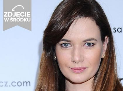 Karolina Malinowska powiększyła usta? To zdjęcie budzi wątpliwości