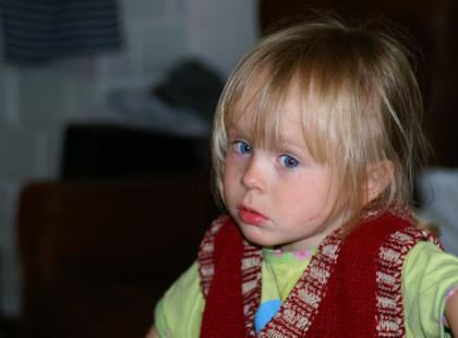 Kiedy dziecko ma zeza