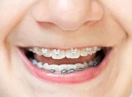 Kiedy dziecko potrzebuje wizyty u ortodonty?