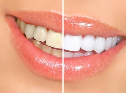Kiedy można wybielić zęby?