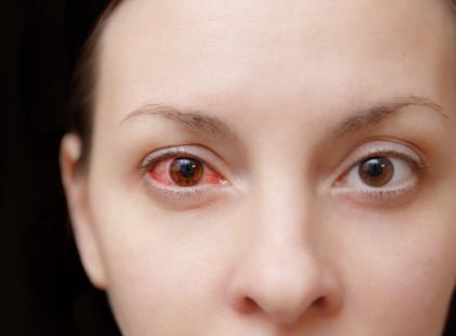 Kobieta oślepła po użyciu starego tuszu do rzęs. Niech ta historia będzie przestrogą!
